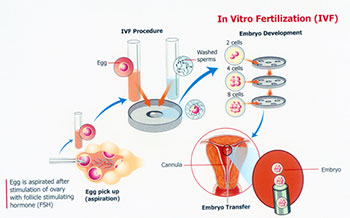 Cost of IVF Treatment in Kerala